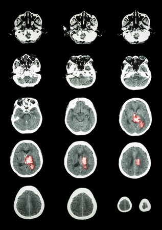 hemorragia: Accidentes cerebrovasculares hemorr�gicos. TC (tomograf�a computarizada) del cerebro (sistema cerebrovascular): La hemorragia intracerebral en hemisferio cerebral izquierdo Foto de archivo