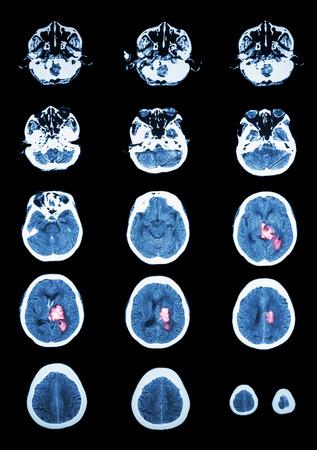 cerebral: Hemorrhagic Stroke .  CT scan (computed tomography) of brain ( cerebrovascular system )  :  Intracerebral hemorrhage at left cerebral hemisphere Stock Photo