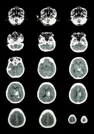 hemorrhagic: Hemorrhagic Stroke .  CT scan (computed tomography) of brain ( cerebrovascular system )  :  Intracerebral hemorrhage at left cerebral hemisphere Stock Photo