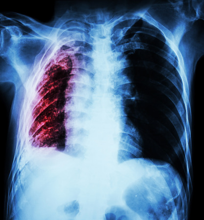 infiltration: Pulmonary Tuberculosis .   Chest X-Ray : Right lung atelectasis and infiltration and effusion  due to Mycobacterium Tuberculosis infection Stock Photo