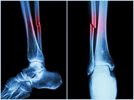 Eje de la fractura del hueso peroné (hueso de la pierna). Radiografía de la pierna (de 2 posiciones: lateral y frontal)