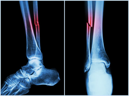 Fracture shaft of fibula bone ( leg bone ) .  X-ray of leg ( 2 position : side and front view ) 版權商用圖片