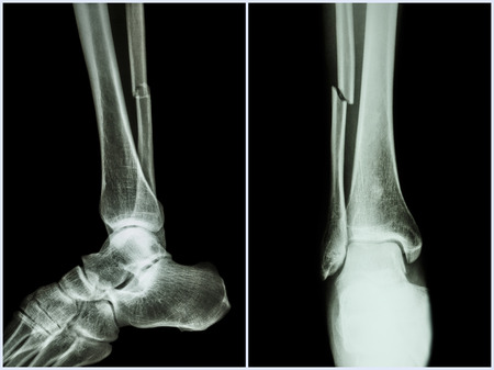 Fracture shaft of fibula bone ( leg bone ) .  X-ray of leg ( 2 position : side and front view ) Stock Photo
