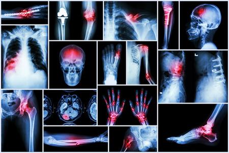 spondylosis: Collection X-ray multiple disease (stroke ,fracture ,osteoarthritis ,pneumonia ,tuberculosis ,spondylosis ,spondylolisthesis ,gout ,rheumatoid arthritis ,brain tumor ,orthopedic operation ,etc) Stock Photo