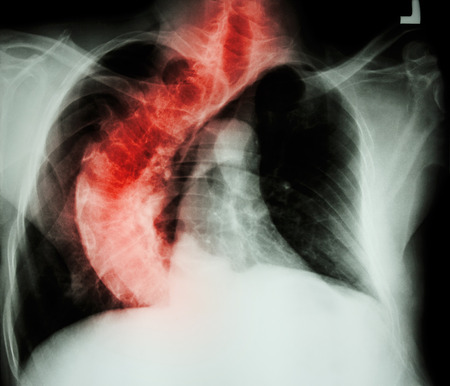 spondylosis: Scoliosis ( crooked spine ) X-ray chest of old people with  crooked spine