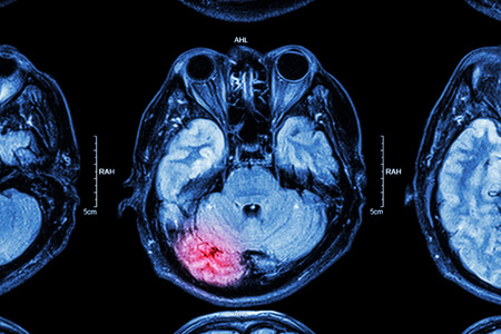 neurological: MRI of brain : brain injury Stock Photo