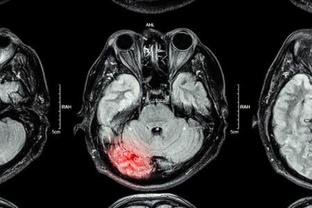 brain injury: MRI of brain : brain injury Stock Photo