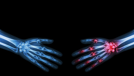 rheumatoid: X-ray normal person is shaking hand with Arthritis hand person Stock Photo