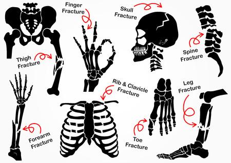 Conjunto óssea fratura ícone (pélvica, quadril, coxa (fêmur), mão, pulso, dedo, crânio, rosto, vértebra, braço, cotovelo, tórax, pé, calcanhar, perna) design preto & branco (conceito de cuidados de saúde)