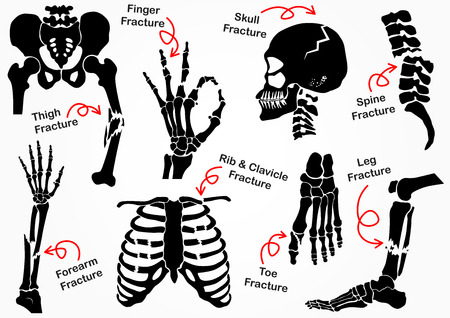 scheletro umano: Impostare Bone Frattura Icon (Pelvic, Hip, coscia (femore), a mano, polso, dita, Skull, Viso, Vertebra, braccio, gomito, Torace, piede, tallone, Gamba) in bianco e nero (concetto di assistenza sanitaria) progettazione