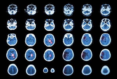 brain injury: Hemorrhagic Stroke and Ischemic Stroke .  CT scan of brain : intracerebral hemorrhage ( 3 left column , cerebral infarction ( 3 right column )) ( Medical and Science background )
