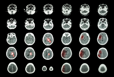 hemorragia: Accidente cerebrovascular hemorr�gico y accidente cerebrovascular isqu�mico. TC del cerebro: la hemorragia intracerebral (3 columna de la izquierda, infarto cerebral (columna derecha 3)) (M�dico y Ciencia de fondo)