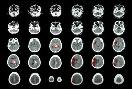hemorrhage: Emorragica Ictus ischemico e ictus. TAC del cervello: emorragia intracerebrale (3 colonna di sinistra, infarto cerebrale (3 colonna di destra)) (Medicina e Scienza sfondo) Archivio Fotografico