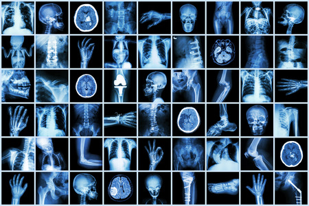 X-ray multiple part of adult and child and Disease ( Pulmonary tuberculosis Stroke kidney stone osteoarthritis bone fracture bowel obstruction spondylosis spondylolisthesis scoliosis brain tumor etc) Stock Photo