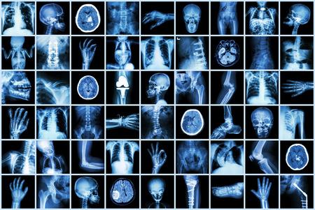 X-ray wielokrotnego część dorosłych i dzieci i chorobie (gruźlica płuc Udar kamicy nerkowej choroba zwyrodnieniowa stawów kości złamania niedrożność jelit kręgosłupa skolioza mózgu guza kręgozmyki etc)