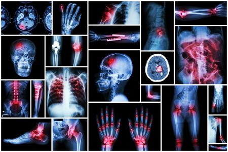 luxacion: De rayos X a m�ltiples enfermedades (accidente cerebrovascular (ACV), fractura, luxaci�n de hombro, obstrucci�n intestinal, artritis reumatoide, gota, artrosis de rodilla, cirug�a ortop�dica, la tuberculosis pulmonar (TB), etc)