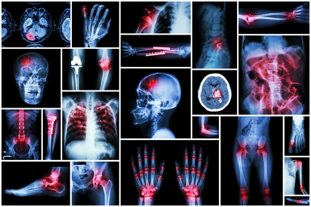 dislocation: X-ray multiple disease ( stroke (CVA) , fracture , shoulder dislocation , bowel obstruction , rheumatoid arthritis , gout , osteoarthritis knee , orthopedic surgery , pulmonary tuberculosis (TB), etc)