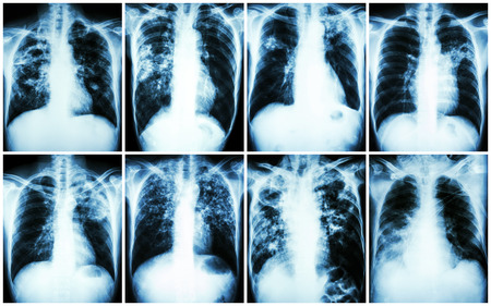 infiltration: Pulmonary Tuberculosis Collection .  Chest X-ray : show patchy infiltration , interstitial infiltration , alveolar infiltration , cavity , fibrosis at lung due to Mycobacterium tuberculosis infection