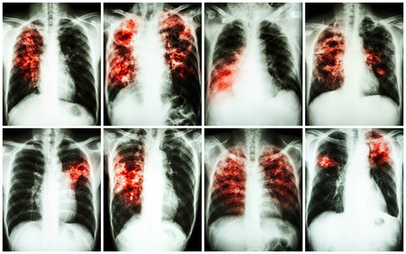 Pulmonary Tuberculosis Collection .  Chest X-ray : show patchy infiltration , interstitial infiltration , alveolar infiltration , cavity , fibrosis at lung due to Mycobacterium tuberculosis infection