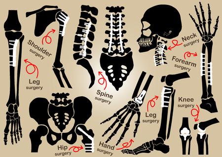 columna vertebral: Colecci�n de la cirug�a ortop�dica (fijaci�n interna por la placa y tornillo) (cr�neo, la cabeza, el cuello, la columna vertebral, el sacro, el brazo, el antebrazo, la mano, el codo, el hombro, la pelvis, muslo, cadera, rodilla, pierna, pie) Vectores