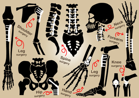 orthopedic: Collection of Orthopedic surgery ( Internal fixation by plate and screw )( skull , head , neck , spine , sacrum , arm , forearm , hand , elbow ,shoulder , pelvic , thigh , hip , knee , leg , foot )