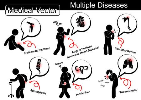 Mehrere Erkrankungen (Arthrose Knie, ischämische Herzkrankheit, Schulter-Verstauchung, Spondylose, Schmerzen im Beckenbereich, Lungentuberkulose (TB)) Standard-Bild - 37440028