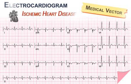 ekg: Electrocardiogram ( ECG , EKG ) of Ischemic Heart Disease ( Myocardial Infarction ) and Anatomy of heart icon