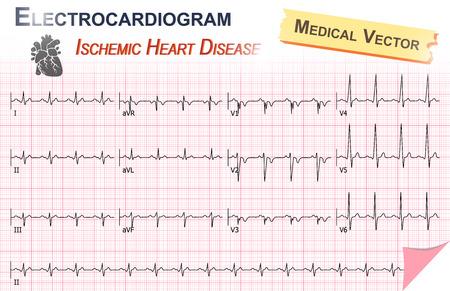 electrocardiograma: Electrocardiograma (ECG) de la cardiopatía isquémica (infarto de miocardio) y Anatomía del icono del corazón Vectores