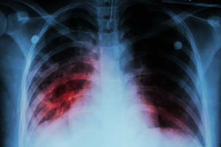 pulmonary: Pulmonary Tuberculosis ( TB )  :  Chest x-ray show alveolar infiltration at both lung due to mycobacterium tuberculosis infection Stock Photo