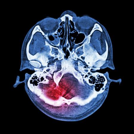 blue brain: Brain injury, Stroke : ( CT scan of brain and base of skull ) ( Bone window )