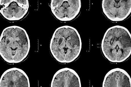 cerebral: Ischemic stroke : ( CT of brain show cerebral infarction at left frontal - temporal - parietal lobe ) ( nervous system background )