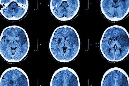 brain injury: Ischemic stroke : ( CT of brain show cerebral infarction at left frontal - temporal - parietal lobe ) ( nervous system background )