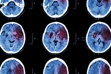 El ictus isquémico: (CT del cerebro muestran infarto cerebral en frontal izquierdo - temporal - lóbulo parietal) (fondo del sistema nervioso) Foto de archivo - 40119929