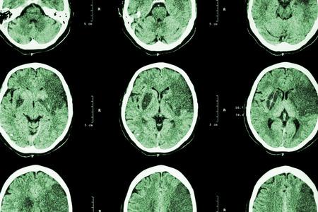 infarction: Ischemic stroke : ( CT of brain show cerebral infarction at left frontal - temporal - parietal lobe ) ( nervous system background )