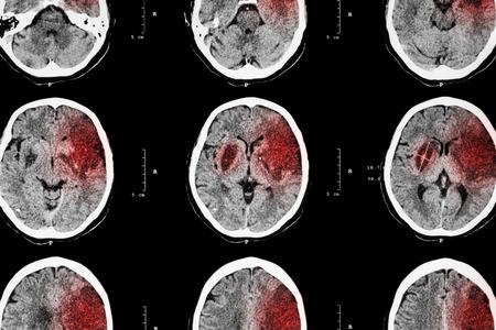 cerebro blanco y negro: El ictus isquémico: (CT del cerebro muestran infarto cerebral en frontal izquierdo - temporal - lóbulo parietal) (fondo del sistema nervioso)