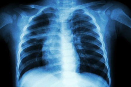 Pulmonary Tuberculosis ( Chest X-ray of child : show patchy infiltration at right middle lung ) Stok Fotoğraf - 40167291