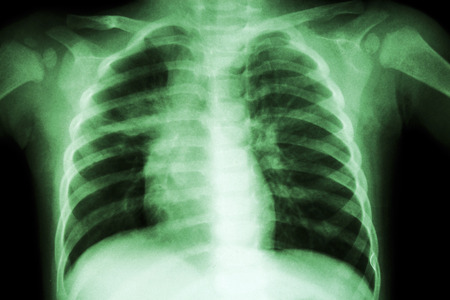 infiltration: Pulmonary Tuberculosis ( Chest X-ray of child : show patchy infiltration at right middle lung )