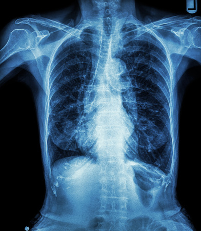 bronchus: Chest X-ray of old patient ( calcification at rib , trachea , bronchus ) Stock Photo