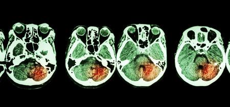 cva: Stroke  ( CT scan of brain and base of skull and Stroke )