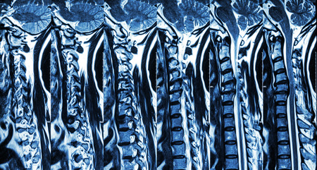 spondylosis: Cervical spondylosis with disc herniation ( MRI of cervical spine : show cervical spondylosis with disc herniation compress spinal cord ( Myelopathy ) ) Stock Photo