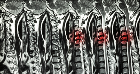 Cervical spondylosis with disc herniation ( MRI of cervical spine : show cervical spondylosis with disc herniation compress spinal cord ( Myelopathy ) ) Stock Photo