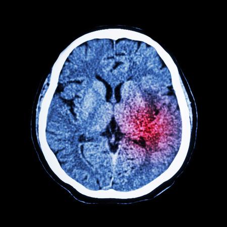 Tomografía computarizada del cerebro muestran ictus isquémico o hemorrágico Stroke Foto de archivo - 40320482