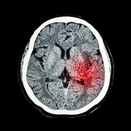 cva: CT scan of brain show Ischemic Stroke or Hemorrhagic Stroke