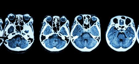 cva: CT scan of brain and base of skull ( show structure of eye , ethmoid sinus , cerebellum , cerebrum, etc ) Stock Photo