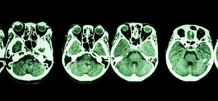 ethmoid: CT scan of brain and base of skull ( show structure of eye , ethmoid sinus , cerebellum , cerebrum, etc ) Stock Photo