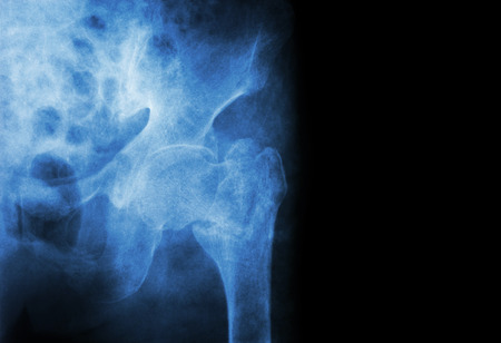acetabulum: intertrochanteric ( Neck of femur ) fracture left femur ( Thigh bone ) and blank area at right side Stock Photo