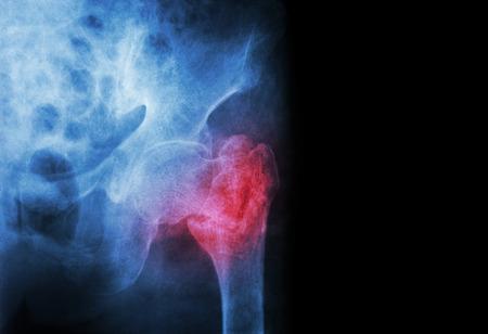 acetabulum: intertrochanteric ( Neck of femur ) fracture left femur ( Thigh bone ) and blank area at right side Stock Photo