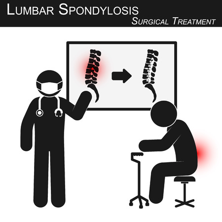 bonhomme allumette: Docteur expliquer sur le traitement chirurgical de l'arthrose lombaire et de montrer l'imagerie de la colonne vertébrale (avant et après l'opération par une fixation interne avec plaque et vis) (vecteur de stickman) (Spine notion de soins)