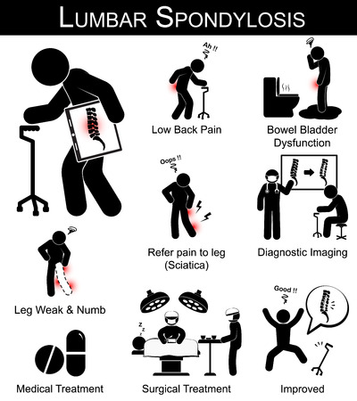legs: Lumbar Spondylosis symptoms pictogram ( Low back pain , refer pain to leg , leg numbness and weakness , Bowel bladder dysfunction ) and Medical , Surgical treatment