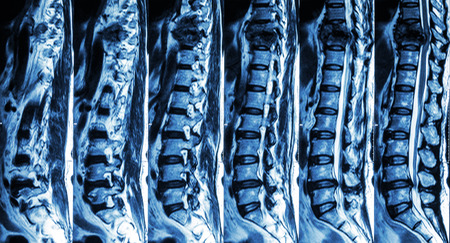 thoracic: MRI of Lumbar & Thoracic spine : show fracture of thoracic spine and compress spinal cord ( Myelopathy )